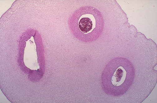 plac074 - those are some wierd looking tissues in the body