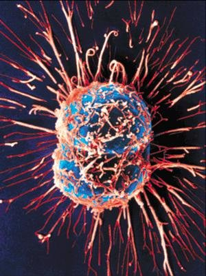 dividing cancer cell small