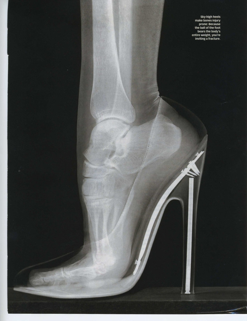 high heels xray truly dont know women are able walk around