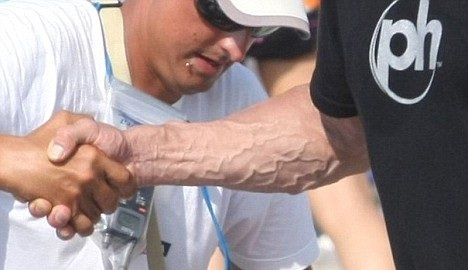 veins 0 - 20 most disgusting google image searches