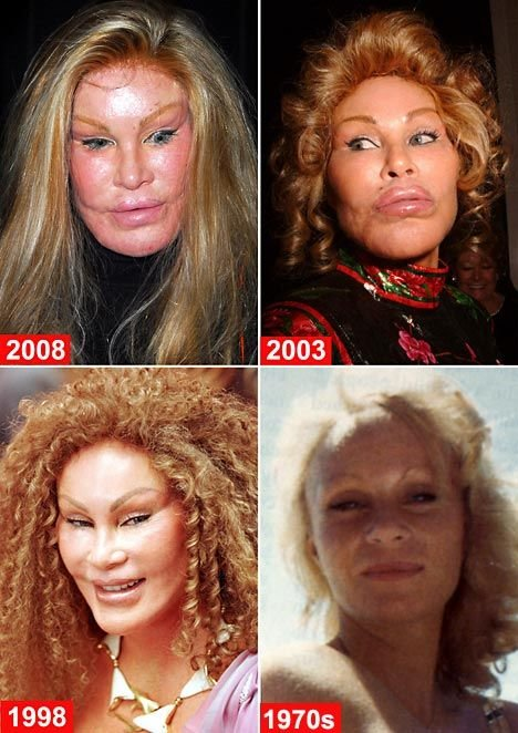worst 03 - plastic surgery gone wrong