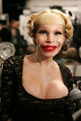 worst 12 - plastic surgery gone wrong