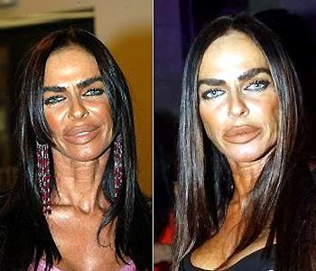 worst 13 - plastic surgery gone wrong