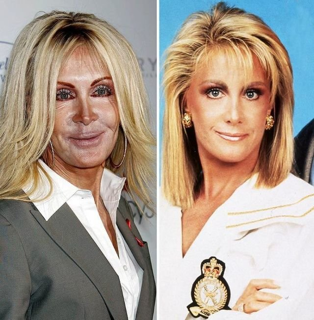 worst 14 - plastic surgery gone wrong