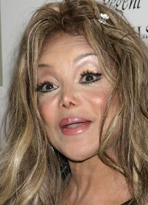 worst 43 - plastic surgery gone wrong