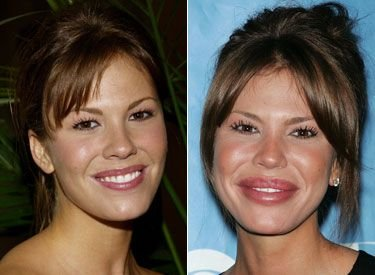 worst 48 - plastic surgery gone wrong