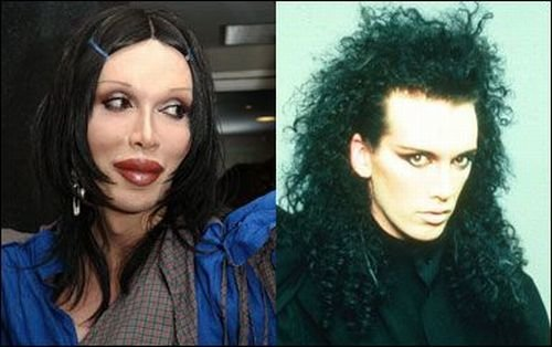 worst 54 - plastic surgery gone wrong